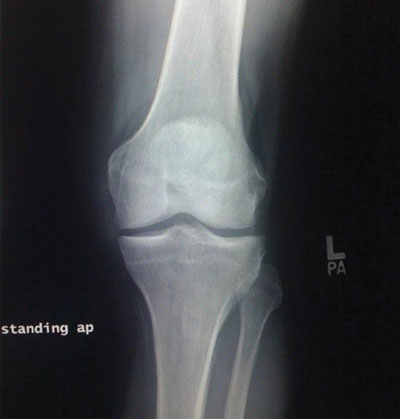 X-ray of Healthy Knee